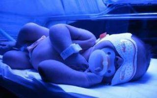 Желтушка у новорожденных: причины и последствия, когда должна пройти