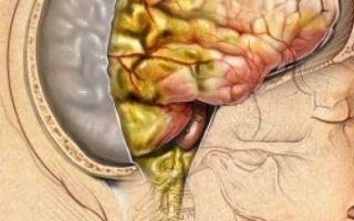Симптомы и лечение вирусного менингита у детей