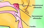 Аденоиды у детей — симптомы, признаки, лечение