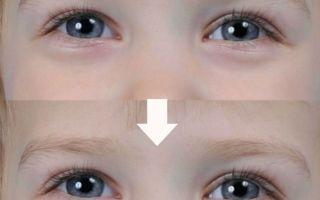 Синяки под глазами у ребенка — причина появления у малыша