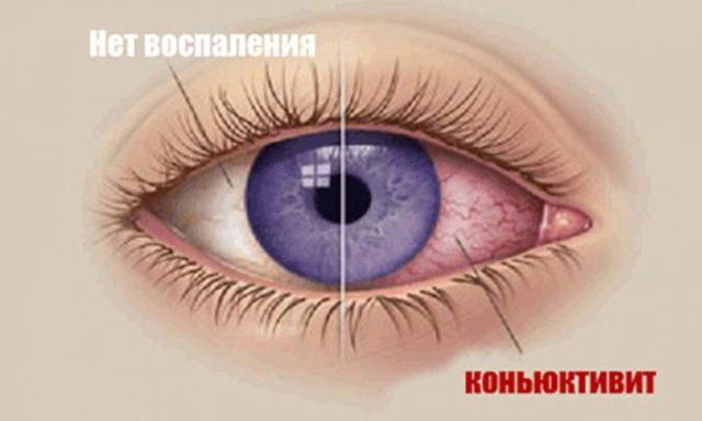 Почему ребенок часто моргает глазами: лечение недуга