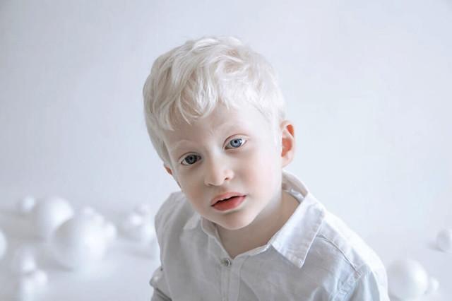Когда меняется цвет глаз у новорожденных