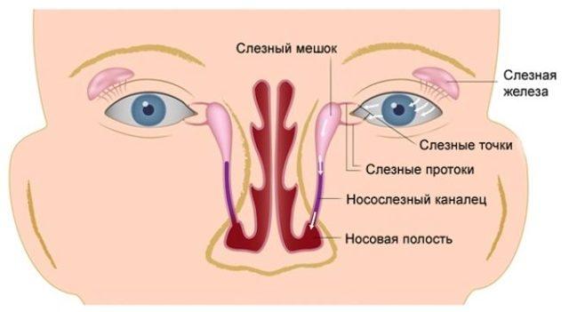 Закупорка (непроходимость) слезного канала у новорожденных