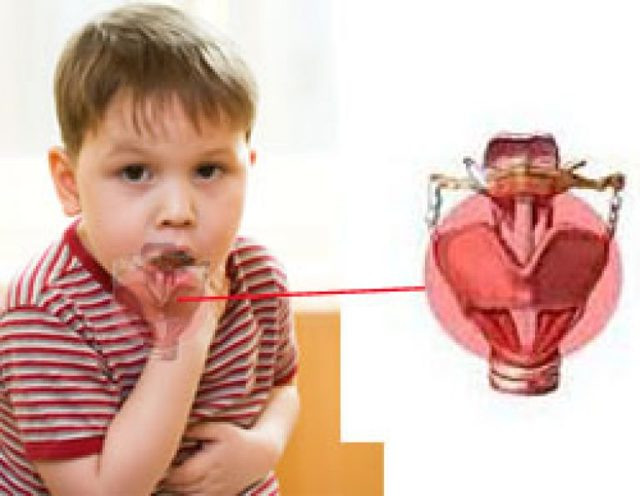 Чем и как лечить ларингит у ребенка