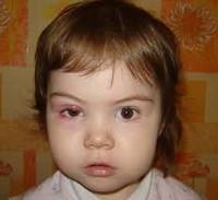 Ячмень на глазу у ребенка: симптомы, причины и лечение