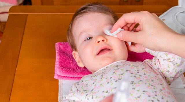 Признаки коньюктивита у детей и способы его лечения