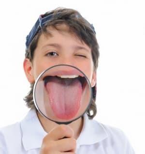 Белый налет на языке у ребенка, причины возникновения и советы Комаровского
