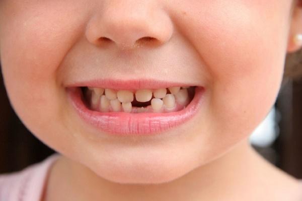 Бывает ли температура при смене молочных зубов на постоянные
