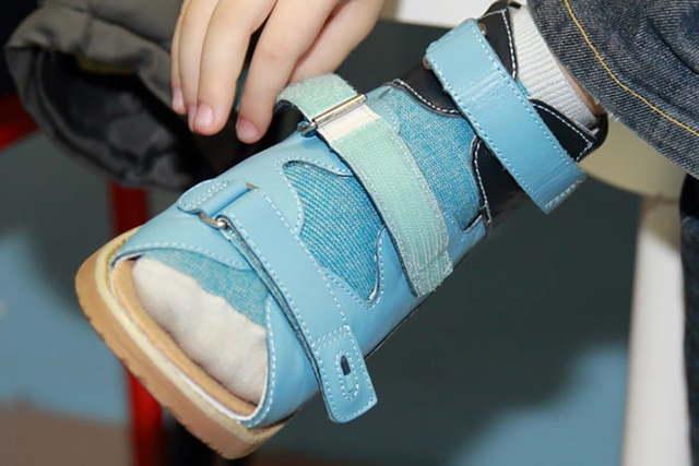 Ребёнок ходит на носочках: причины, что делать