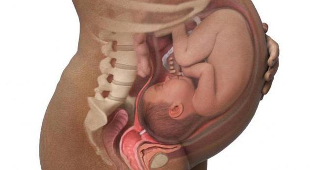 Асфиксия при родах: последствия и причины заболевания плода, новорожденного