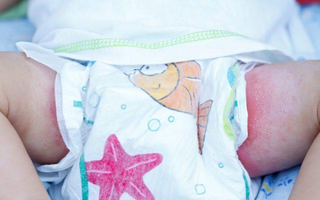 Чем лечитьопрелости у новорожденных грудничков