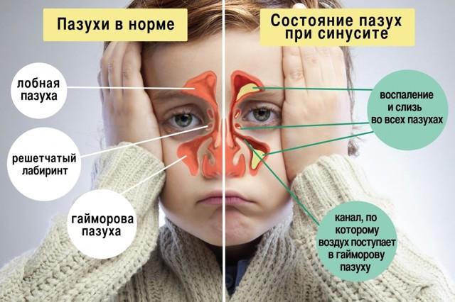 Ребёнок чихает и сопли: чем лечить