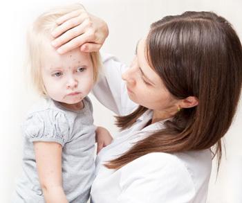 Симптомы краснухи у ребенка и методы ее лечения