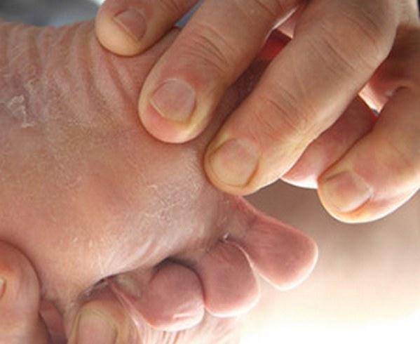 Гибок на ногах у ребенка: лечение