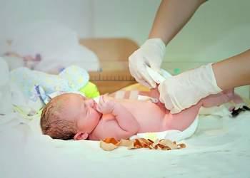 Когда заживает пупок у новорожденного - как обрабатывать сколько ждать