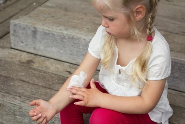 Лишай у детей - разновидность, симптомы и лечение