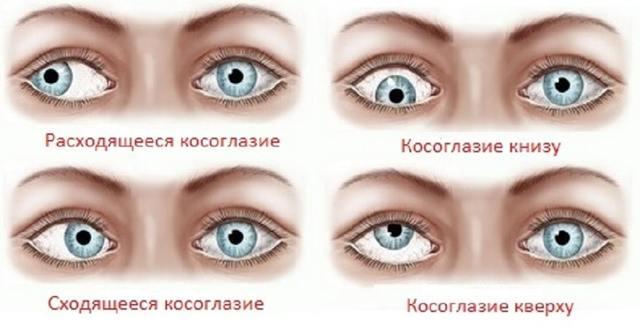 Косят глазки у новорожденного - физиология или болезнь?