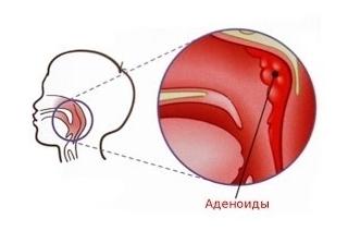 Аденоиды у детей - симптомы, признаки, лечение