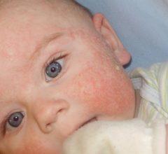 Потничка у детей, как выглядит, причины появления и как ее лечить