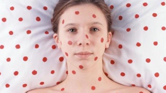 Симптомы кори у детей: признаки и лечение заболевания у ребенка