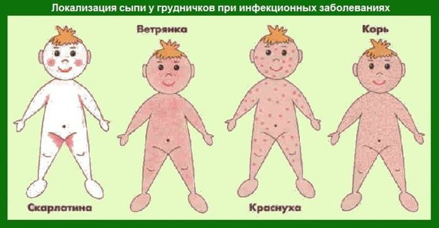 Сыпь на животе и спине у ребенка: без температуры: причины