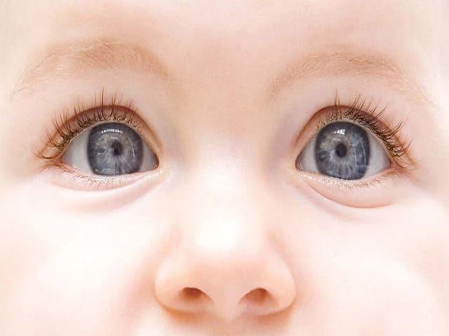 Почему и когда меняется цвет глаз у новорожденных детей