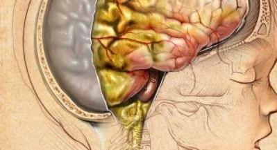 Симптомы менингита у детей 4 лет