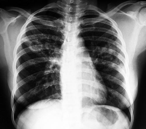Можно ли делать кормящей маме флюорографию, рентген
