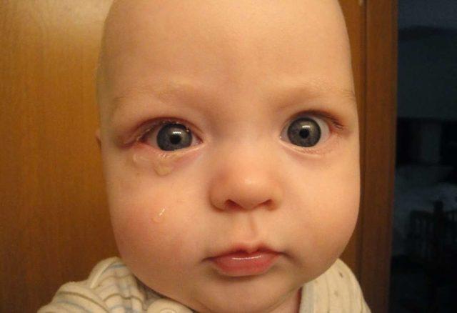 Чем промыть и как протирать глаза новорожденному